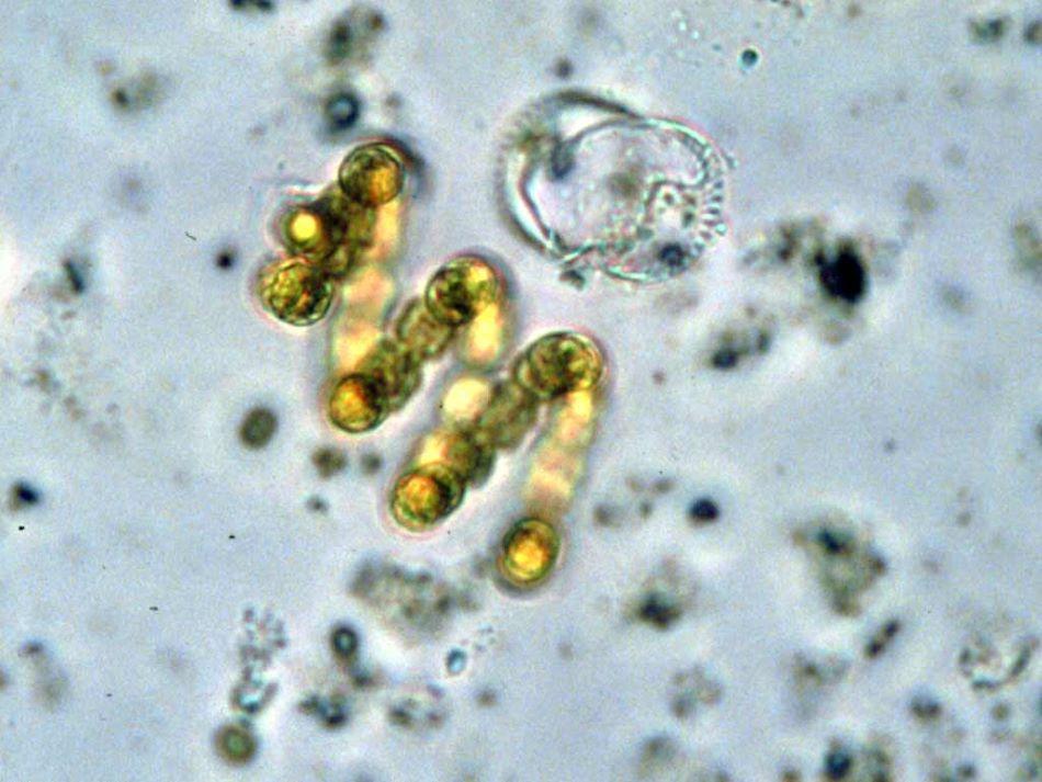 Mikroskopický snímek sinice Anabaena spiroides, foto Environmental Protection Agency [Public domain].