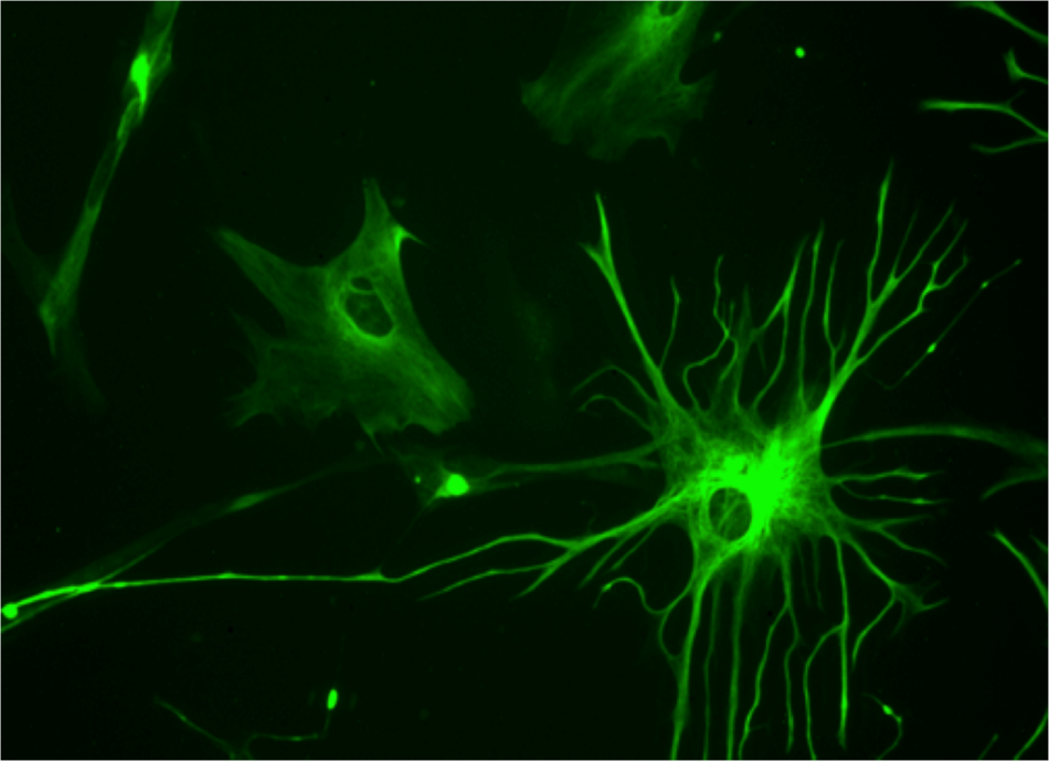 Mikroskopický snímek barvené gliové buňky (glie) z kultury mozkových buněk. Jde o typ glie, který nazýváme kvůli jeho tvaru astrocyt, foto Bruno Pascal [CC BY-SA 3.0 (https://creativecommons.org/licenses/by-sa/3.0)].