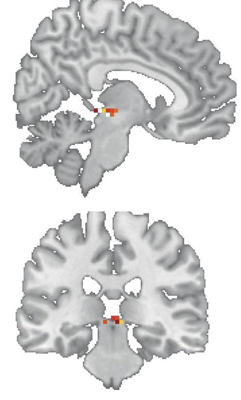 Nahoře oblast mozku změněná znalostí čtení na řezu v mediánní (předozadní) rovině, dole v rovině pravolevé neboli frontální.