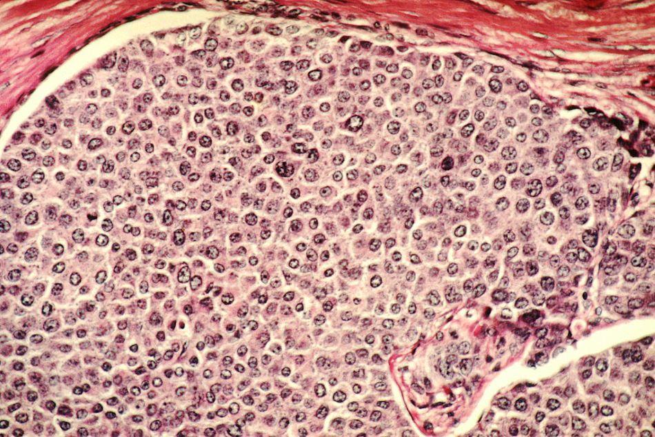 Mikroskopický snímek buněk rakoviny prsu, Dr. Cecil Fox (Photographer) [Public domain].