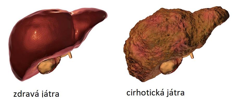 Vlevo lidská játra normální, vpravo postižená cirhózou, upraveno podle obr.healthdirect, Department of Health, Australian Government.