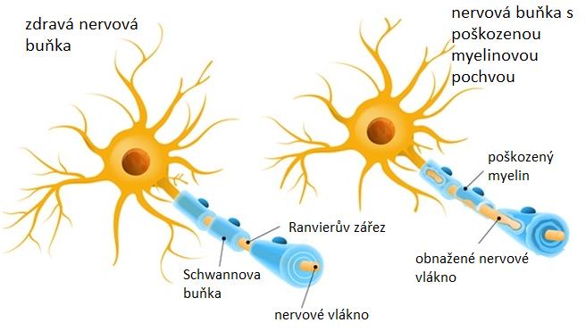 Srovnání zdravé nervové buňky vlevo a nervové buňky s poškozenou myelinouvou pochvou vpravo.