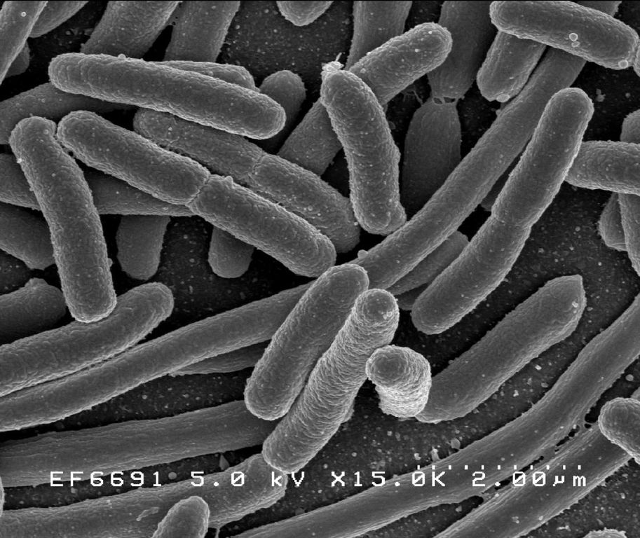 Bakterie Escherichia coli obrázku na snímku rastrovacího elektronového mikroskopu (Rocky Mountain Laboratories, NIAID, NIH, via Wikimedia Commons, public domain).