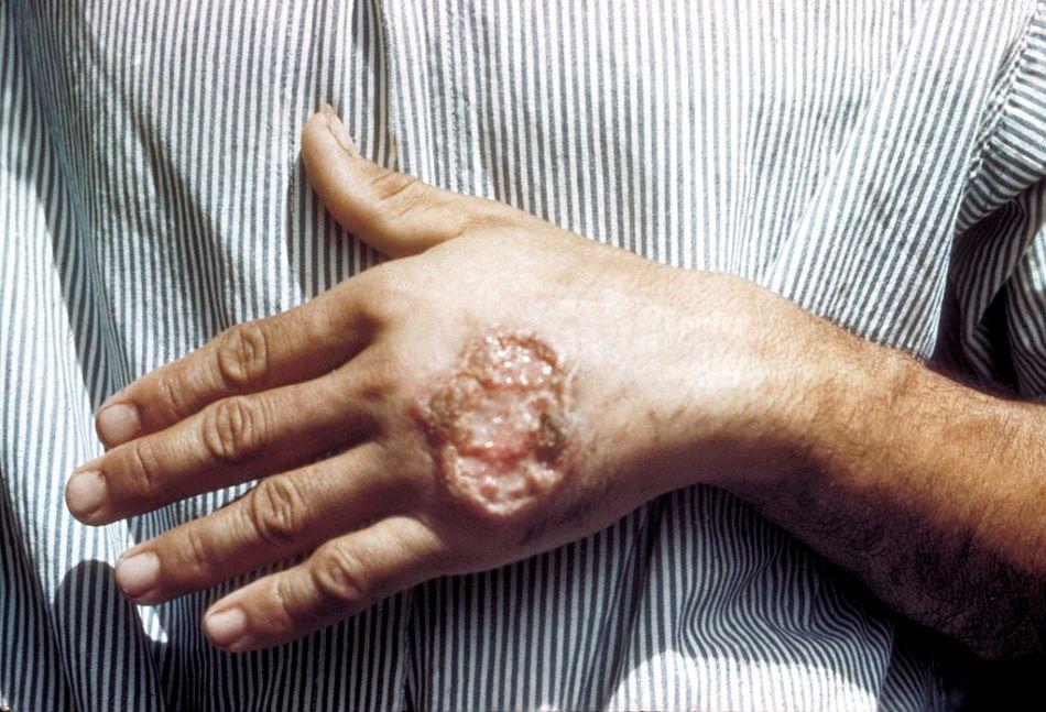 Kožní leishmanióza na ruce, CDC/ Dr. D.S. Martin [Public domain].