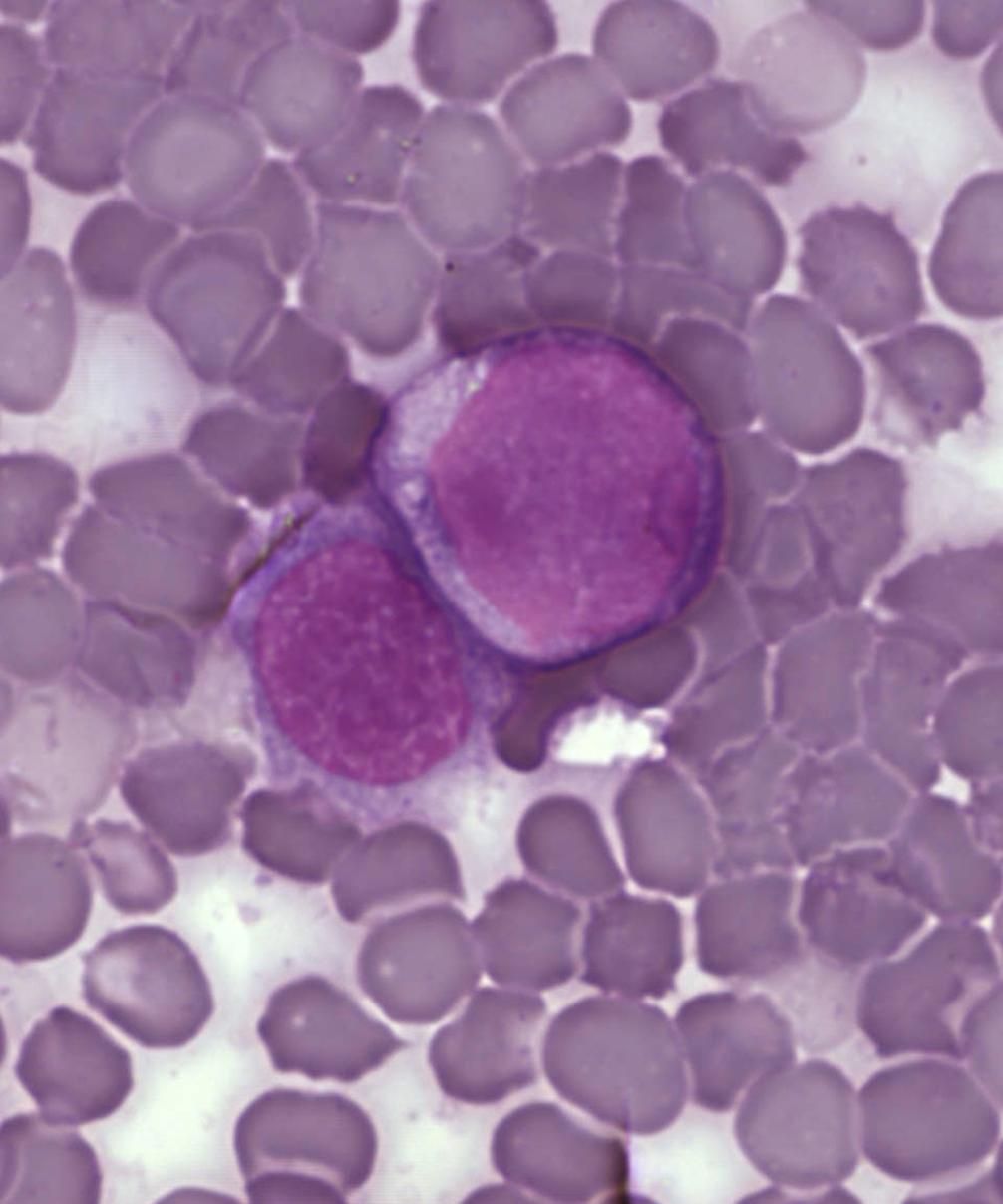 leukemické buňky v nátěru krve, (2005) A Surprising New Path to Tumor Development. PLoS Biol 3(12): e433. doi:10.1371/journal.pbio.0030433