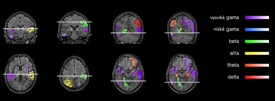 Aktivity mozkových vln alfa, beta, gama, delta a theta v různých částech mozku  získaných zobrazením pomocí jaderné magnetické rezonance. Vysoká frekvence gama vln odpovídá 70 až 150 Hz, nízká 30 až 70 Hz. Levá hemisféra je vlevo, pravá vpravo. Upraveno podle P.Sacré et al., Risk-taking bias in human decision-making is encoded via a right–left brain push–pull system,  PNAS 2019, doi: 10.1073/pnas.181125911.