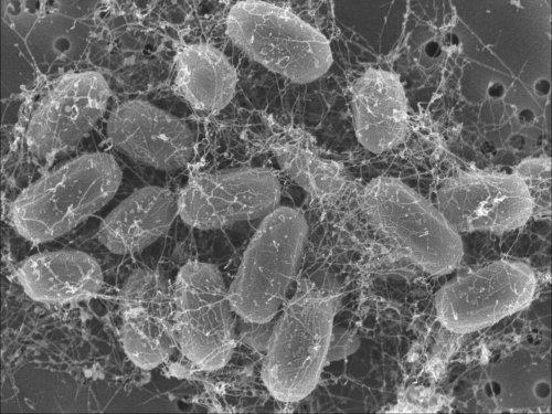 Spóry anthraxu propojené uhlíkovými nanotrubicemi