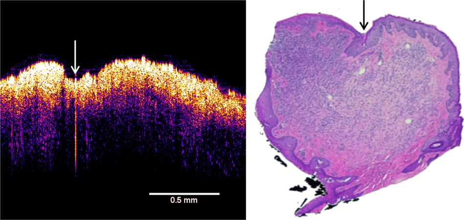 Porovnání VOCT vyšetření (vlevo) a histopatologického (vpravo) na základě mikroskopie řezu tkání. Šipka označuje melanocytový nevus, nezhoubné nahromadě  pigmentových buněk melanocytů, obr. Rutgers University.