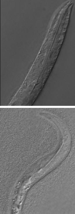 Mikroskopický snímek zdravého (nahoře) a otráveného (dole) haďátka C.elegans (E. Ben-David, A. Burga, L. Kruglyak). Trávicí trubice je tenká linie v ose tvorečka. Její poškození na dolním snímku je naprosto zřetelné.