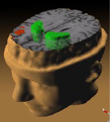 Snímek mozku schizofrenika pořízený pozitronovou emisní tomografií. Rozdíly oproti normálnímu mozku vyznačuje červená a zelená. Červená označuje zmenšení objemu čelního laloku, zelená část mozku zvaná striatum vykazuje zvýšenou koncentrací dopaminu, Andreas Meyer-Lindenberg, M.D., Ph.D., NIMH Clinical Brain Disorders Branch on the tree of life, National Institutes of Health, public domain.
