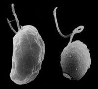 Snímek řas Guillardia theta (vlevo) a Bigelowiella natans pořízený elektonovým mikroskopem. Foto prof.Geoff McFadden, University of Melbourne, Australia